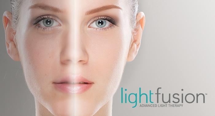 LightFusion