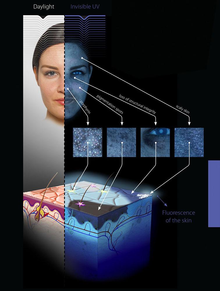 Observ UV Technology